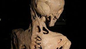 """Страдавшая от """"каменной болезни"""" американка завещала свое тело музею"""